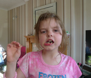 5th Jun 2015 -  Lost Another Tooth....