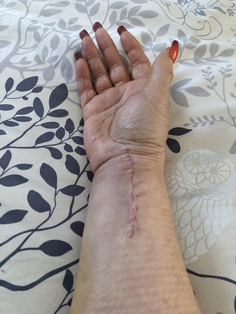 My Poor Arm by kjarn