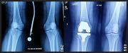 14th Aug 2019 - Knee X-Rays
