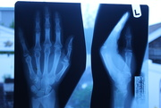 24th May 2020 - X-ray