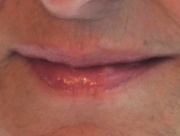 3rd Sep 2020 - Above the Philtrum