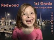 20th Sep 2020 - 4 teeth gone