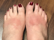 27th Oct 2020 - Oh, my sunburned feet!