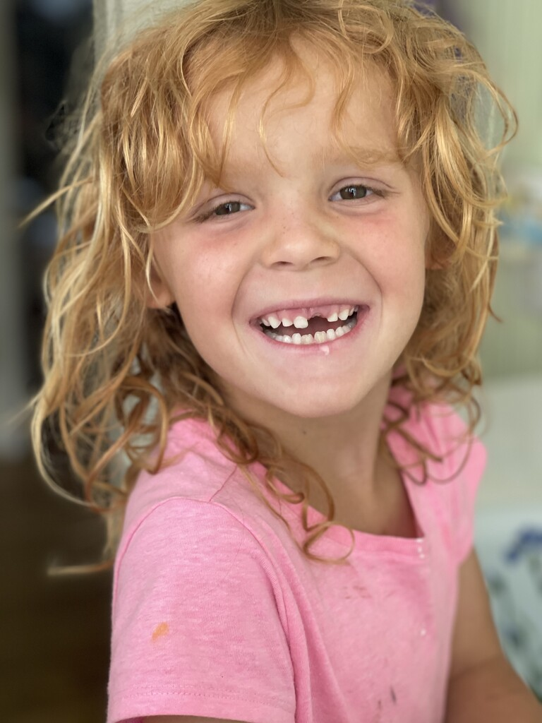 She finally lost her top tooth! by shesnapped